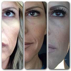 Fewer Wrinkles, Smoother Skin & Eyelash Growth